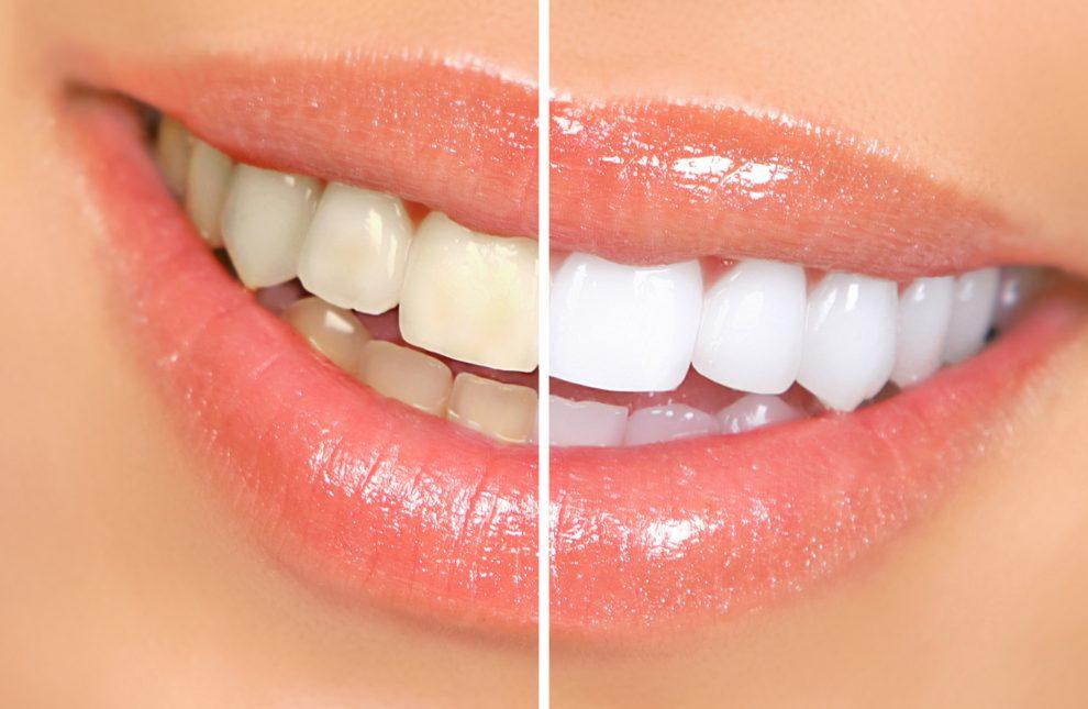Clareamento, Resina ou Cerâmica? Qual é o melhor tratamento estético para os meus dentes?