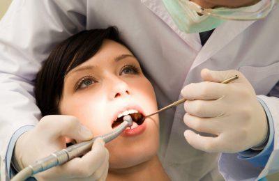 dente manchou