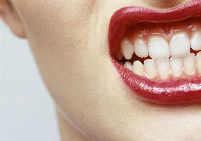 Será que o bruxismo está danificando meus dentes?