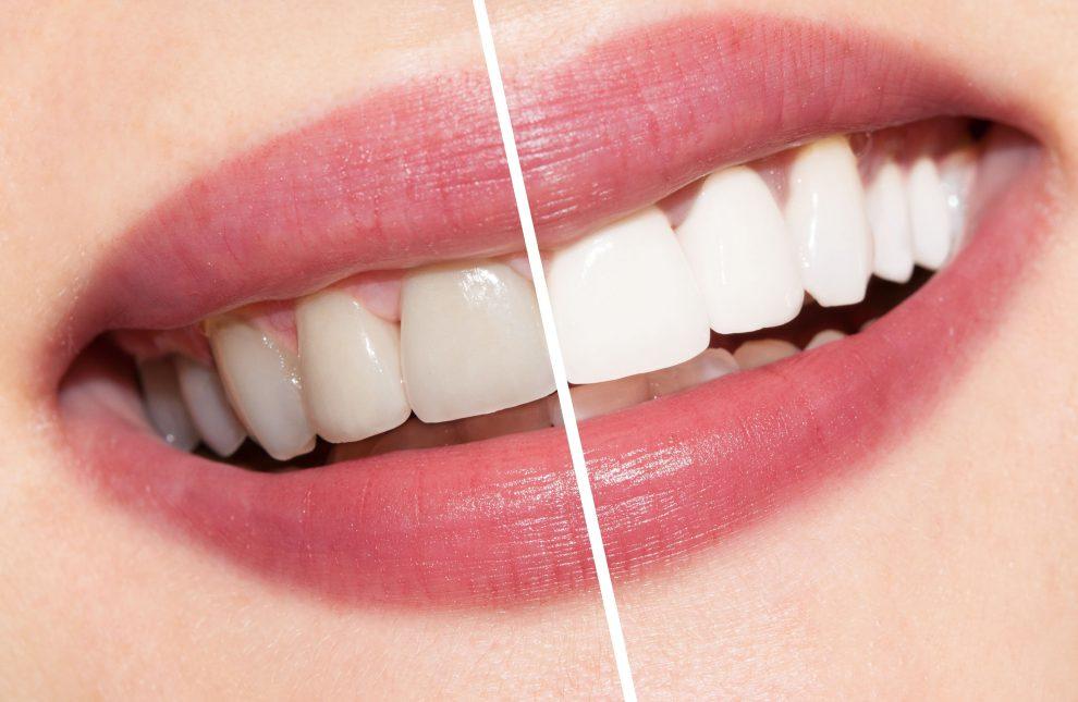 Dê um up no seu sorriso em poucos dias com o clareamento dental