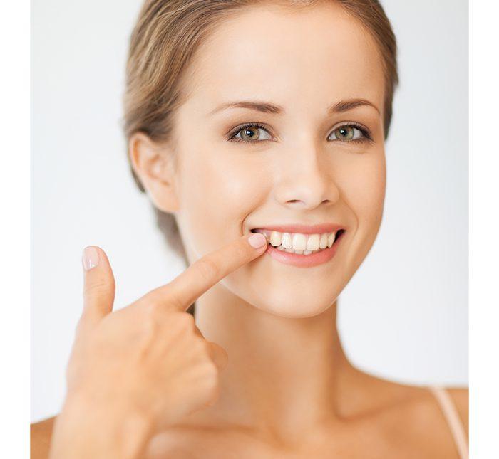 Manchas amareladas nos dentes têm solução?